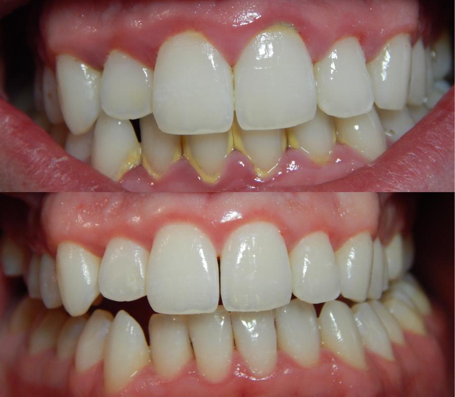 hammaslääkäri neuvonta|ientulehdus puhdistus