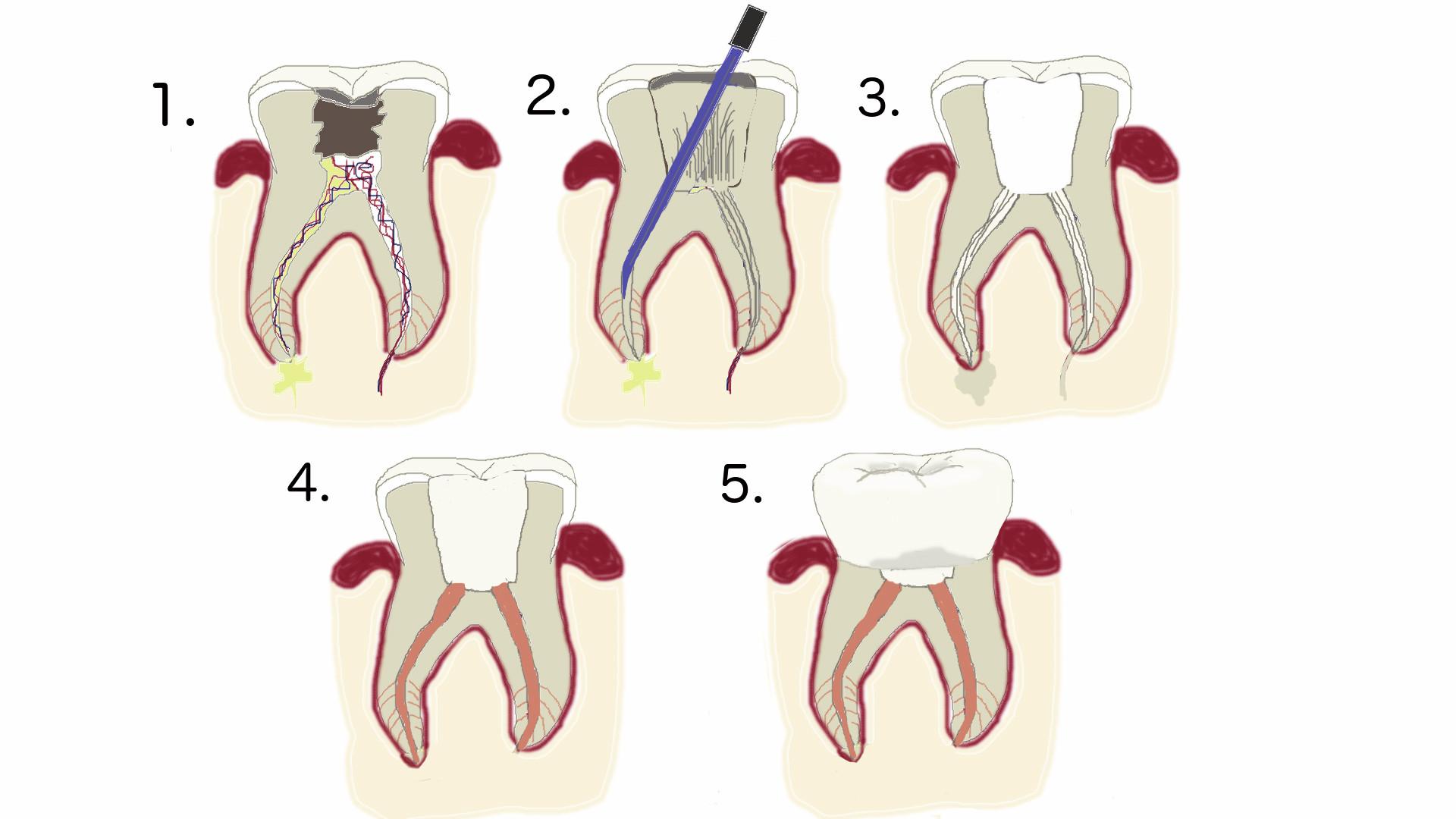 Juurihoito – tulehtuneen hampaan pelastus - Helsinki Gasellin Hammaslääkärit