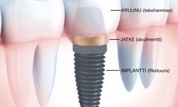 Potilaan silmin –hammasimplantti ja sen asennusleikkaus