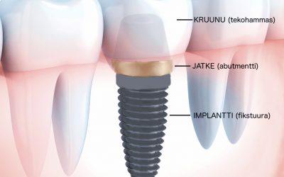 Hampaiden proteettinen ja implanttiproteettinen hoito