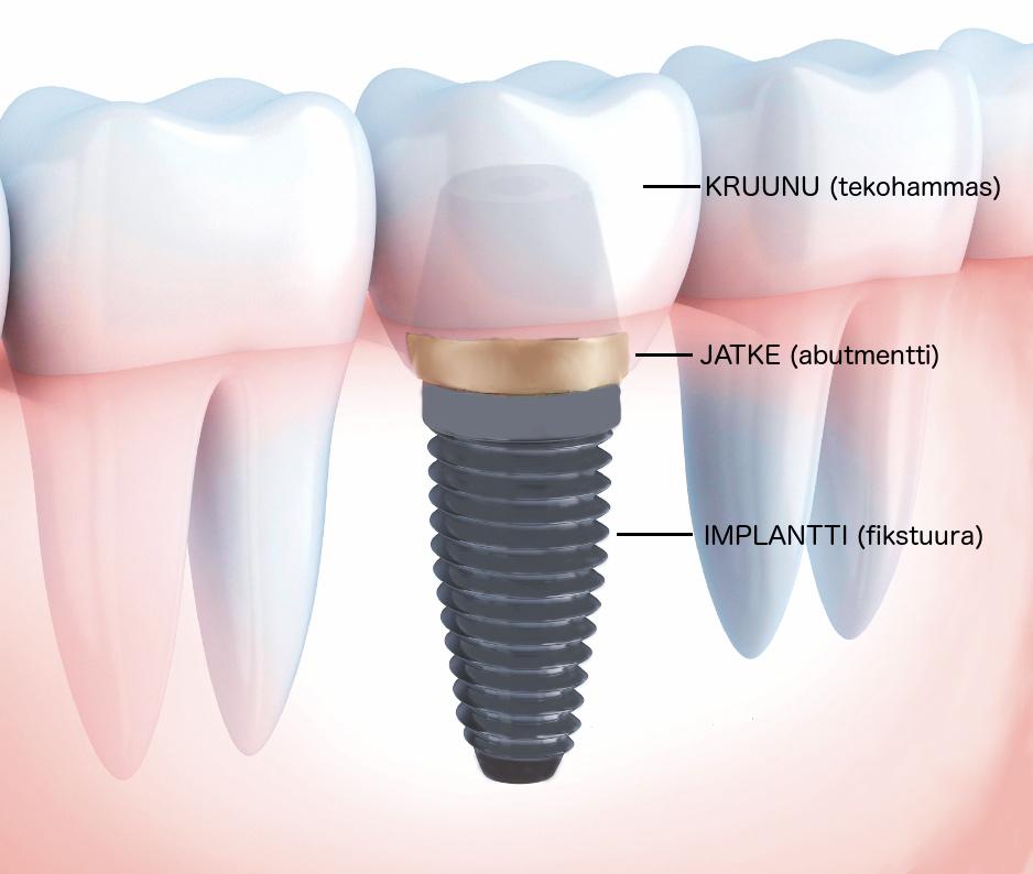 hammasimplantti