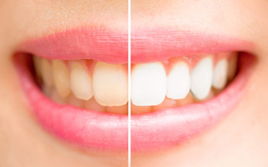 Hampaiden valkaisu