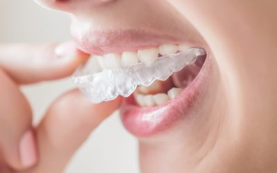Esteettinen hammashoito